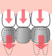 圧力がかかるので歯の寿命は短くなります