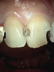 虫歯(削り終わり)