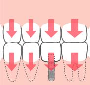 周囲の歯のダメージは少ない