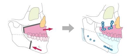 上下顎の両方手術を行う場合